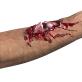 Lažna rana otvoreni prijelom kosti
